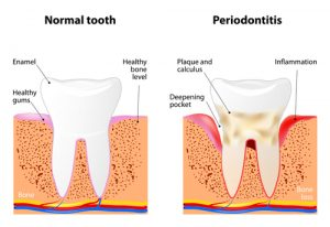 Periodontal Therapy Image